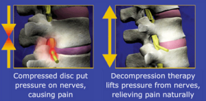 Use a VerteCore Lift to Manage Pain from Bulging Discs, Pinched Nerves, Sciatica or SI Joint Dysfunction